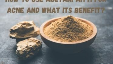 How to Use Multani Mitti for Acne and its Benefits?